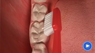 WebPakOnline Brushing Adult Teeth