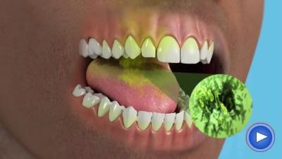 WebPakOnline Bad Breath