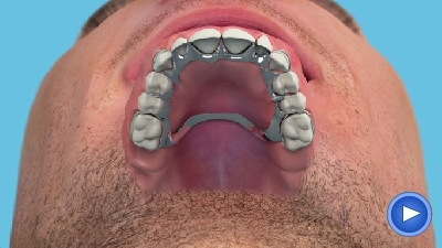 Dentures solutioingenieria Image collections