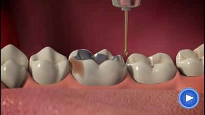 WebPakOnline Dental Crowns