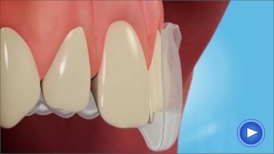 WebPakOnline Teeth Whitening
