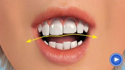 WebPakOnline Teeth Reshaping