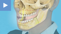 Mandibular Set-back