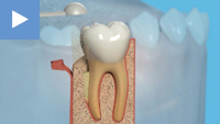 Perio' Bone Grafting
