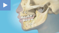 Mandibular and Maxilary Advancement